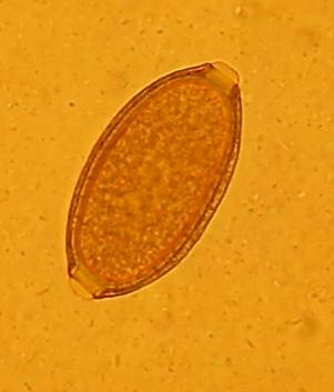 Eitje van een zweepworm
