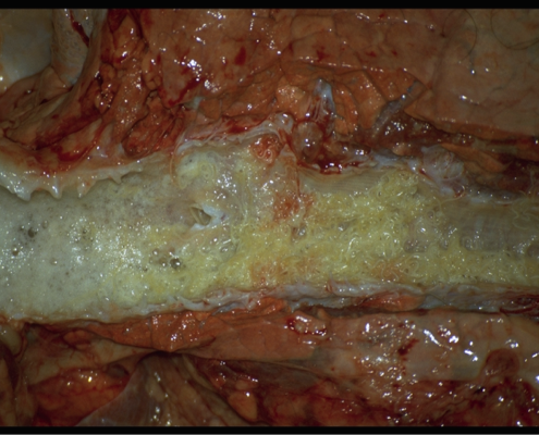Longwormen in luchtwegen (foto. H.Ploeger, Fac. Dierg. Utrecht)